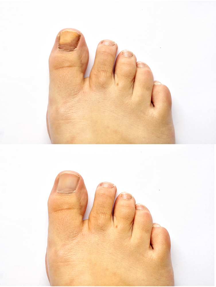 Toenail Fungus Laser Treatment – Family Foot & Ankle Care